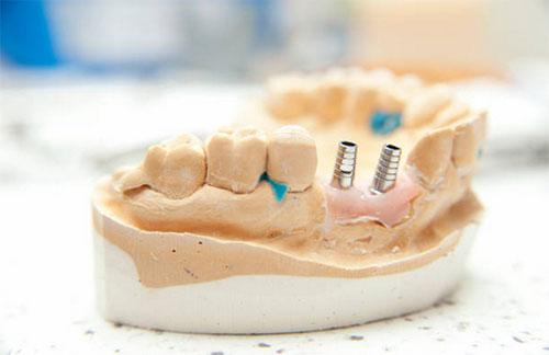 Dental Implants Wichita KS - Dold Family Dental