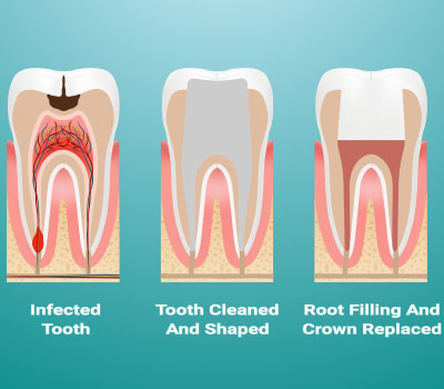 Root Canal Therapy Wichita KS - Dold Family Dental